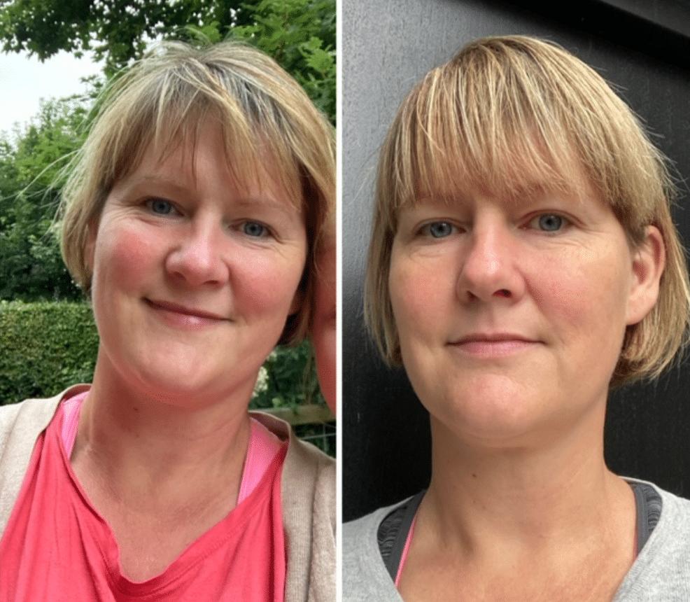 Vægttab – Anna har tabt de overflødige kilo